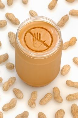 Allergisch auf Nüsse: Was heißt das für Betroffene?
